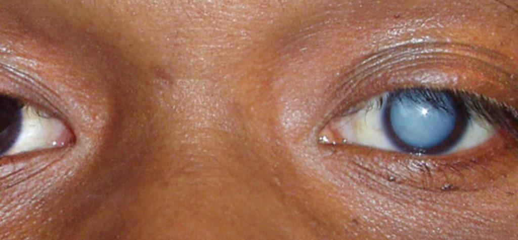 Después de la operación de cataratas ¿ves borroso? Descubre el porqué de este fenómeno ocular