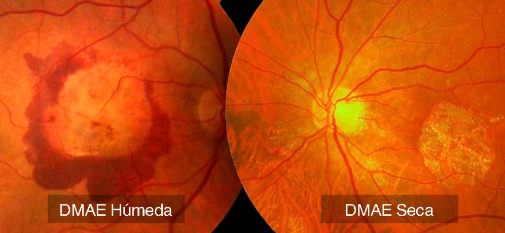 ¿Qué es la degeneración macular húmeda?