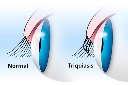 Así es la triquiasis, cuando la córnea y las pestañas se rozan