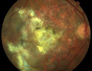 degeneracion macular humeda