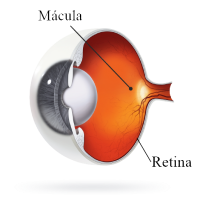 tratamiento degeneración macular dmae